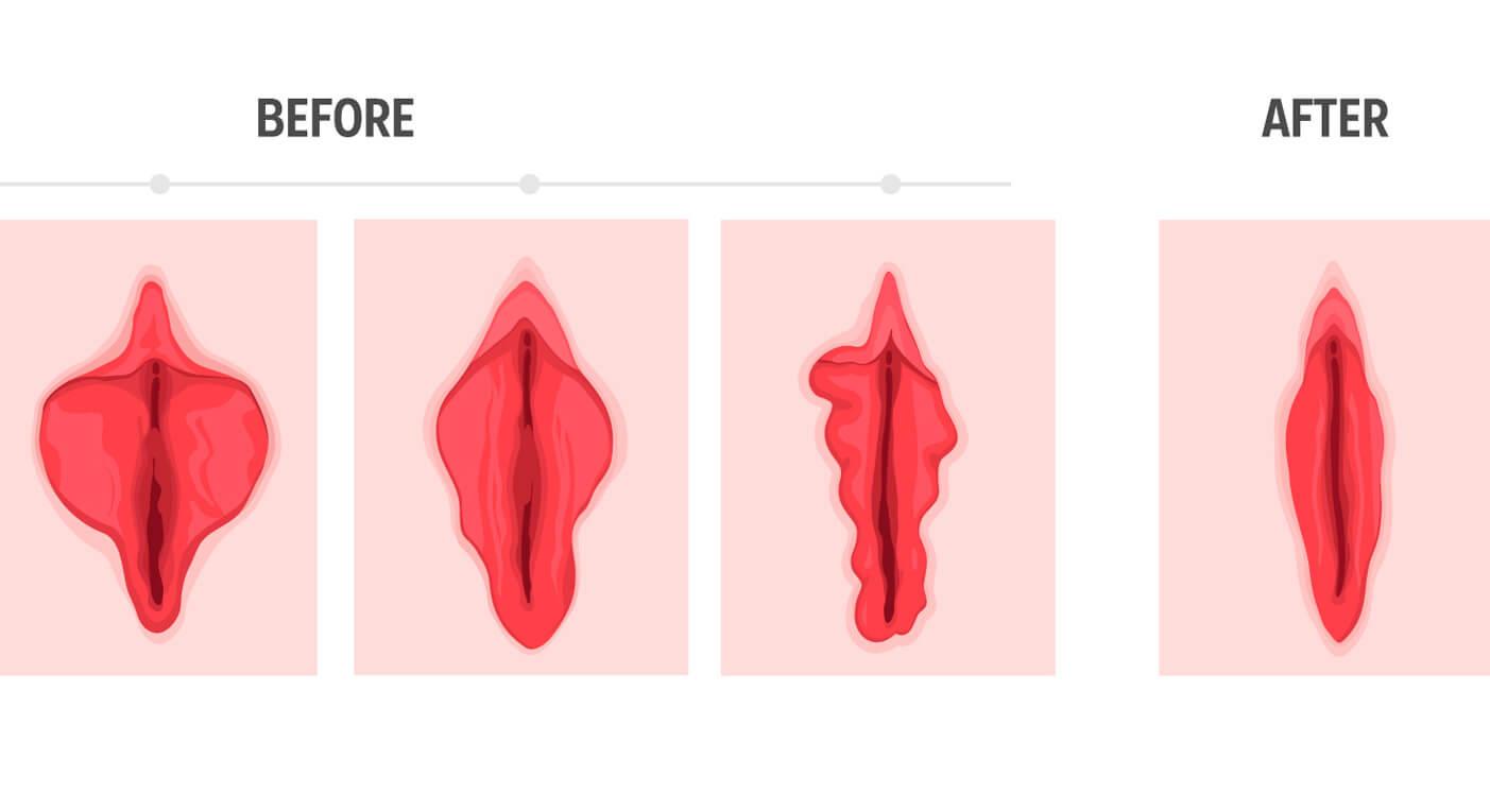 Vaginoplastia Posterior