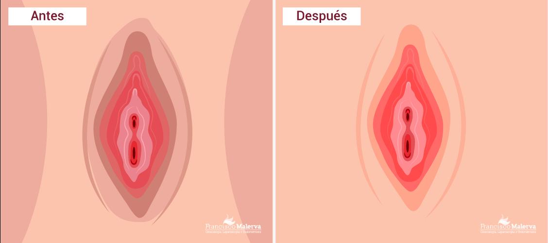 Despigmentación Genital, Blanqueamiento Genital, Despigmentación Láser